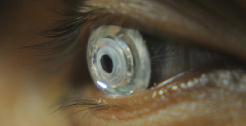 Zooming contact lenses