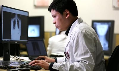 AI to detect lung cancer