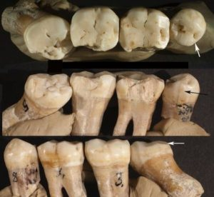 krapina neanderthal teeth impacted molar